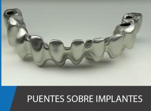puete_sobre_implantes